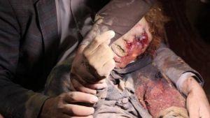 ضحايا-مجزرة-العدوان-السعودي-في-ارحب-1