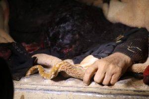 ضحايا-مجزرة-العدوان-السعودي-في-ارحب-5